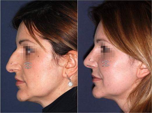 rinoplastica punta del naso prima e dopo 2