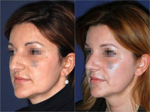 rinoplastica punta del naso prima e dopo 3