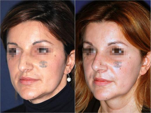 rinoplastica punta del naso prima e dopo 4