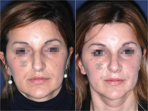 nose tip reduction before and after