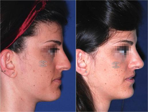 nose tip rhinoplasty before and after 1