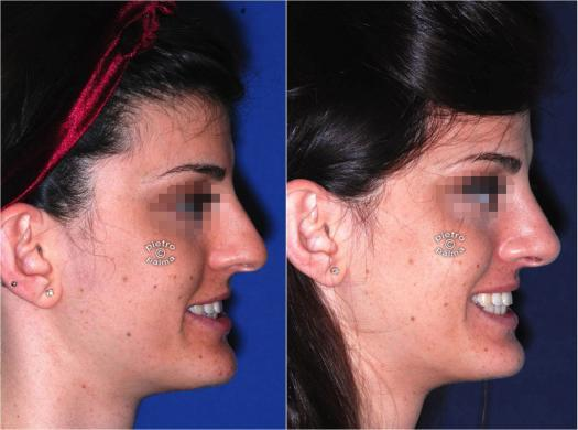 nose tip rhinoplasty before and after 2
