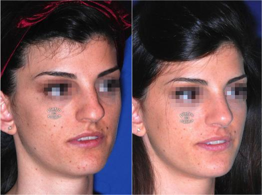 nose tip rhinoplasty before and after 3