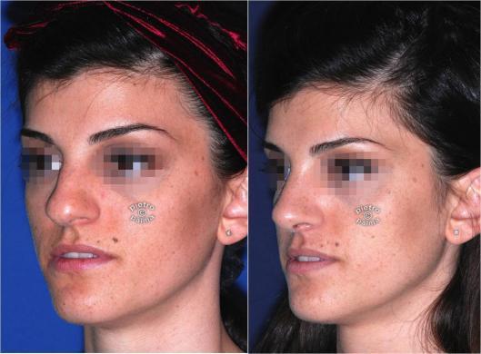 rinoplastica punta naso 3