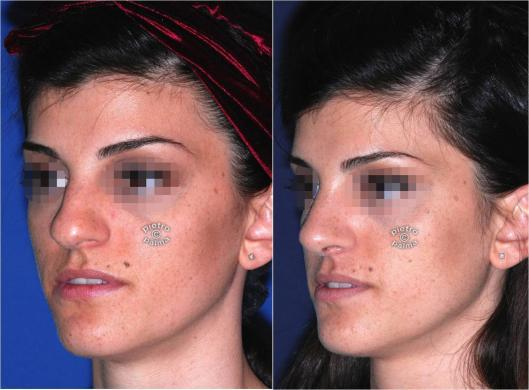 nose tip rhinoplasty before and after 4