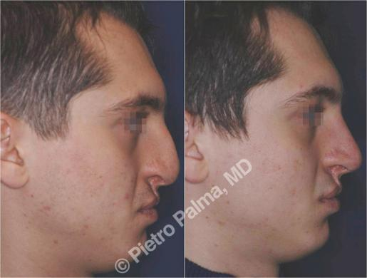 rhinoplasty before and after special cases men