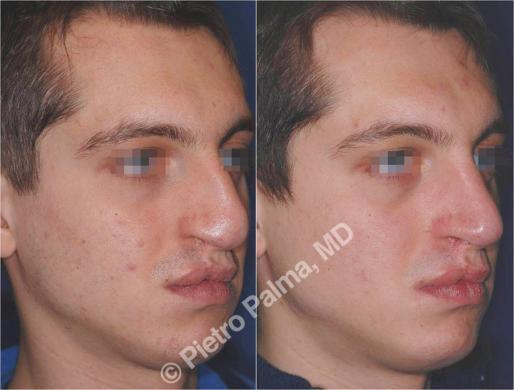 naso rifatto prima e dopo casi speciali uomo 3