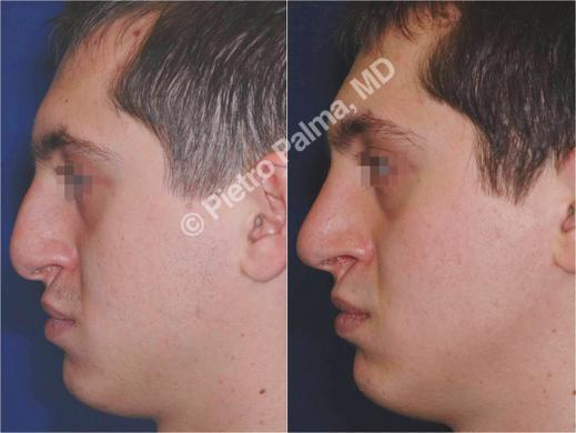 rhinoplasty before and after special cases men 2