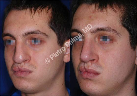 naso rifatto prima e dopo casi speciali uomo