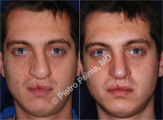 rhinoplasty before and after special cases men 4