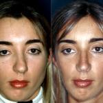 setto nasale deviato prima e dopo