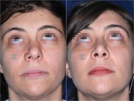 setto nasale deviato prima e dopo 5