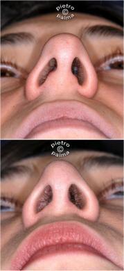 setto nasale deviato 2