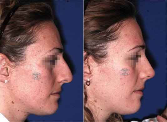 rinoplastica naso grosso prima e dopo 3