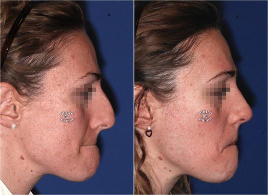 rimpicciolire il naso chirurgia prima e dopo
