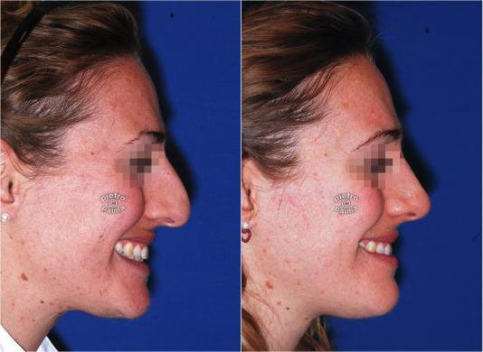 nose reduction before and after