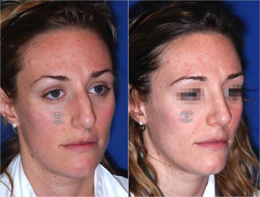 rinoplastica riduttiva prima e dopo 1