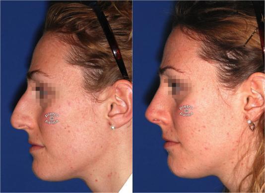 rinoplastica riduttiva prima e dopo 2