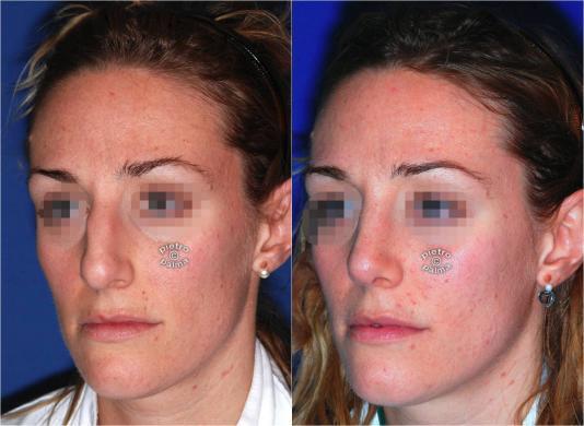 rinoplastica naso grosso prima e dopo