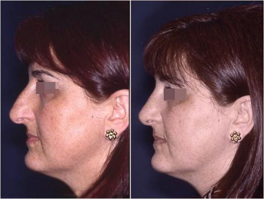 nose job before and after special cases