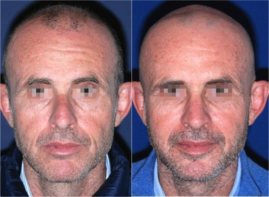 mens nose job before and after