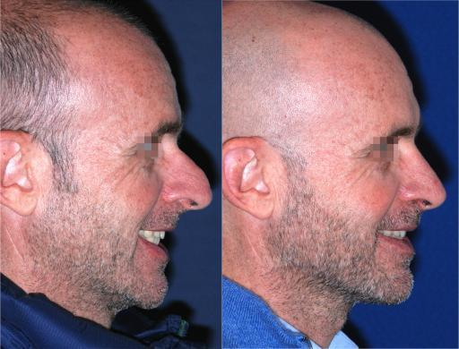 mens nose job before and after 2