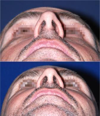 naso rifatto uomo prima e dopo
