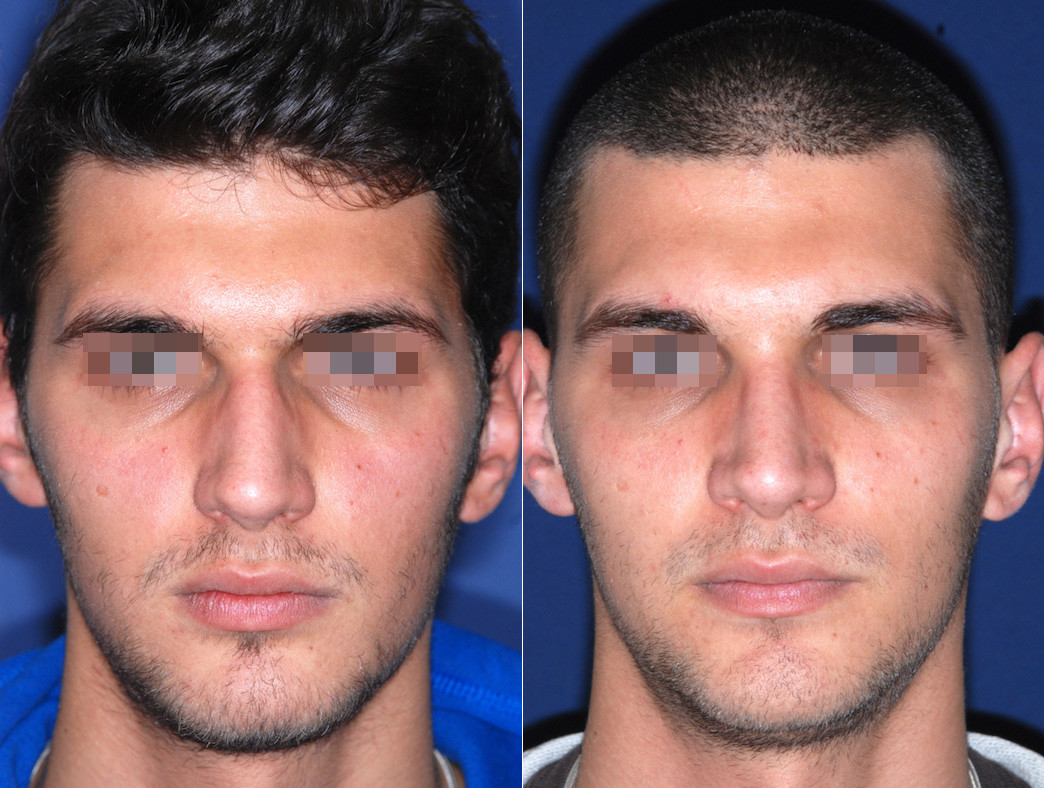 rinoplastica uomo prima e dopo