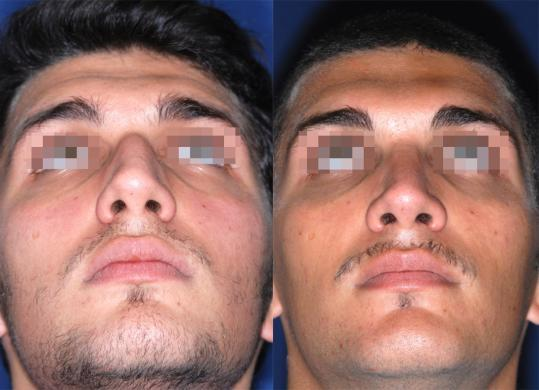 rhinoplasty male before and after 1