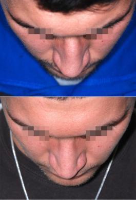 rinoplastica uomo prima e dopo 1