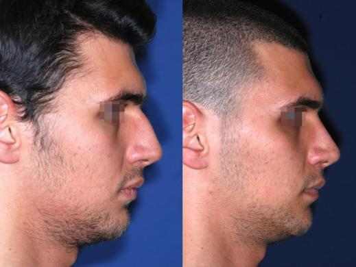 rinoplastica uomo prima e dopo 2