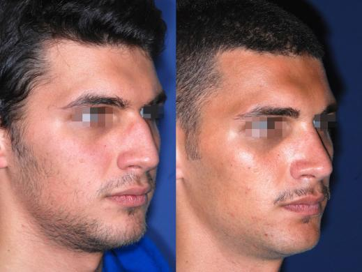 rhinoplasty male before and after 7