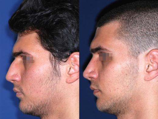 rhinoplasty male before and after 6