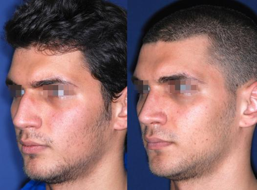 rhinoplasty male before and after 3