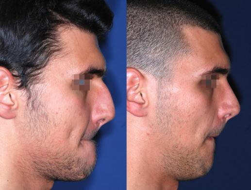 rhinoplasty male before and after 4
