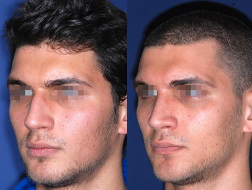 rhinoplasty male before and after 5