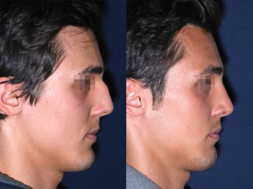 rinoplastica prima e dopo uomo 3
