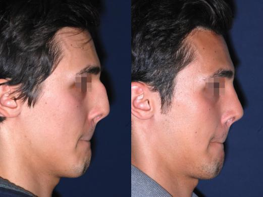 before and after rhinoplasty male 1