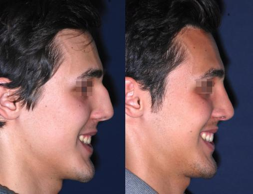 before and after rhinoplasty male 2
