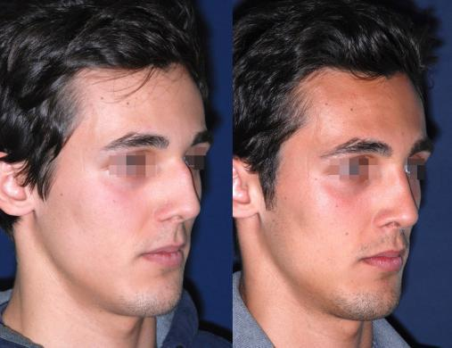 before and after rhinoplasty male 3