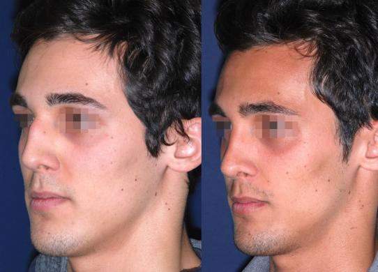 before and after rhinoplasty male 4