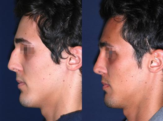 before and after rhinoplasty male 5