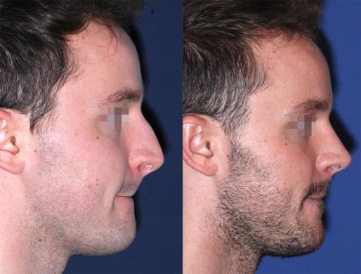 rinoplastica uomo prima e dopo 5