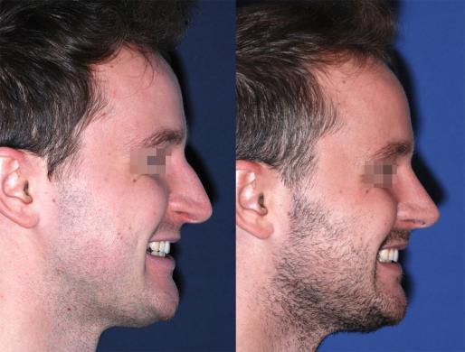 rinoplastica uomo prima e dopo 6