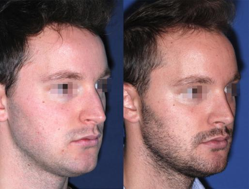 rhinoplasty men 2