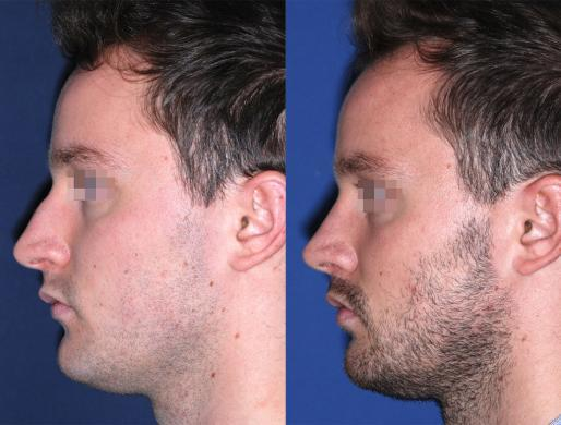 rhinoplasty men 3