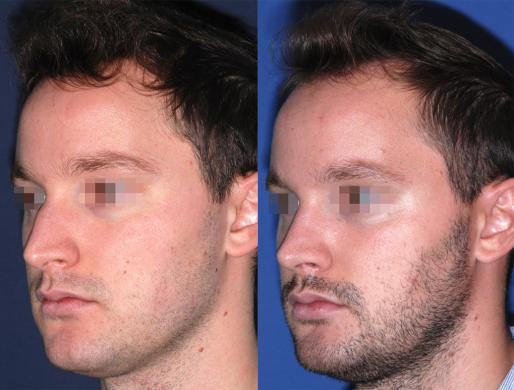rhinoplasty men 4
