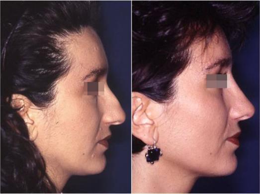 rinoplastica prima e dopo casi speciali donna 3