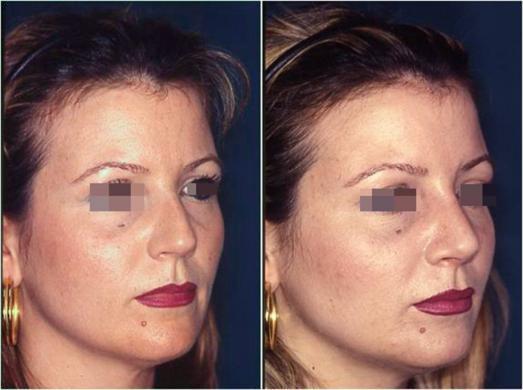 rinoplastica prima e dopo casi speciali donna 4