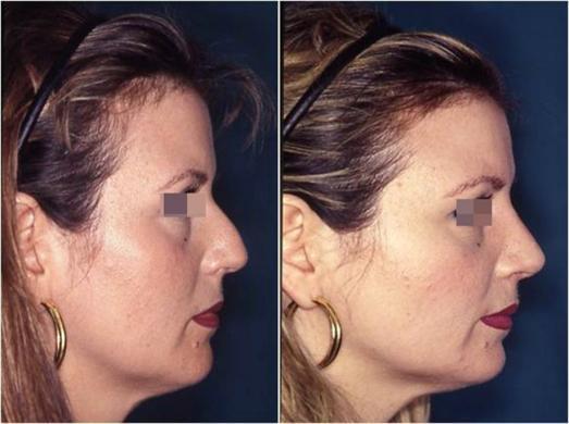 rinoplastica prima e dopo casi speciali donna 5